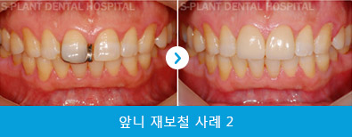 splant-front-teeth-040