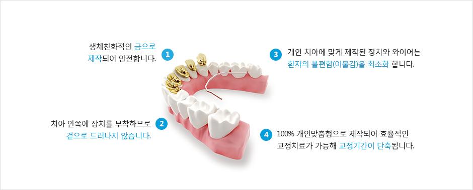 1.생체친화적인 금으로 제작되어 안전합니다./2.치아 안쪽에 장치를 부착하므로 겉으로 드러나지 않습니다./3.개인 치아에 맞게 제작된 장치와 와이어는 환자의 불편함(이물감)을 최소화 합니다./4.100% 개인맞춤형으로 제작되어 효율적인 교정치료가 가능해 교정기간이 단축됩니다.