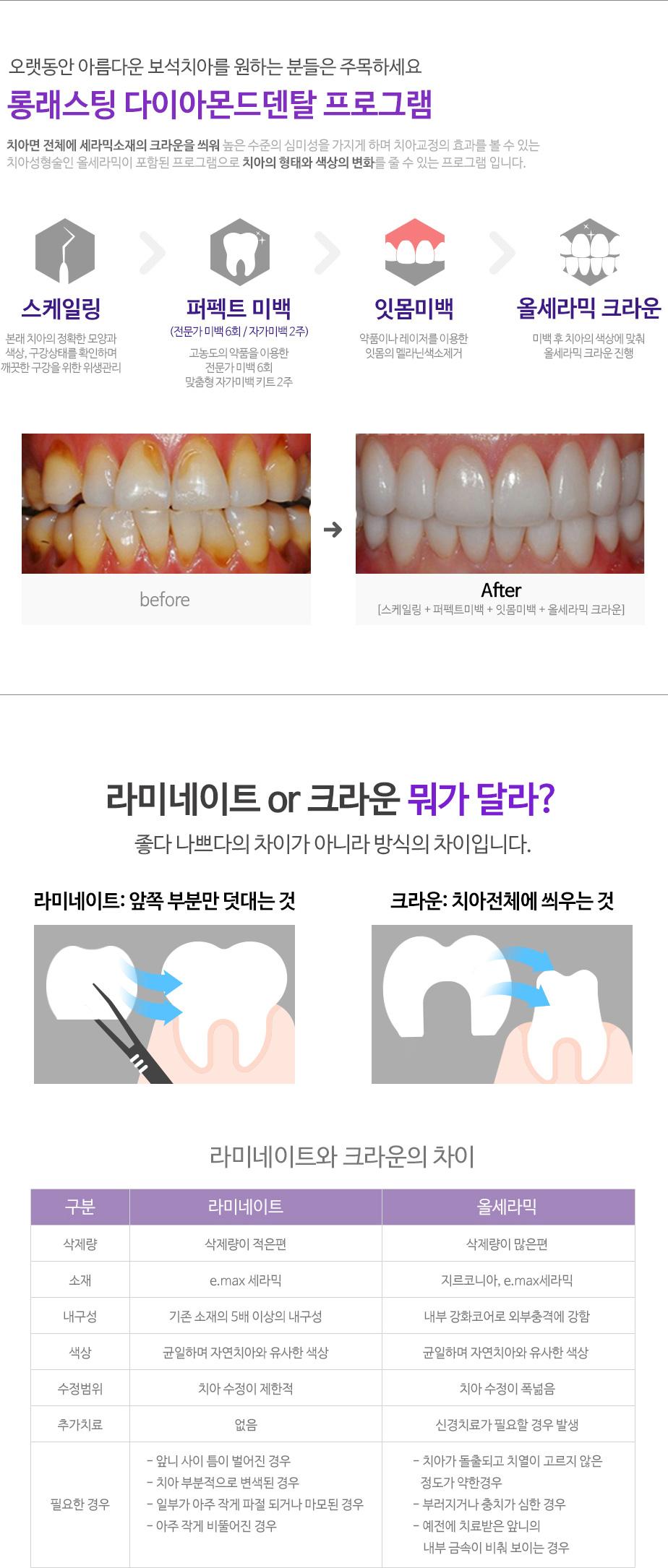 web_dental-beauty_02_02